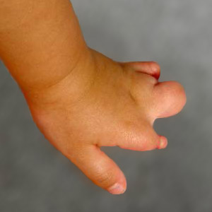 What Is Amniotic Constriction Band Syndrome