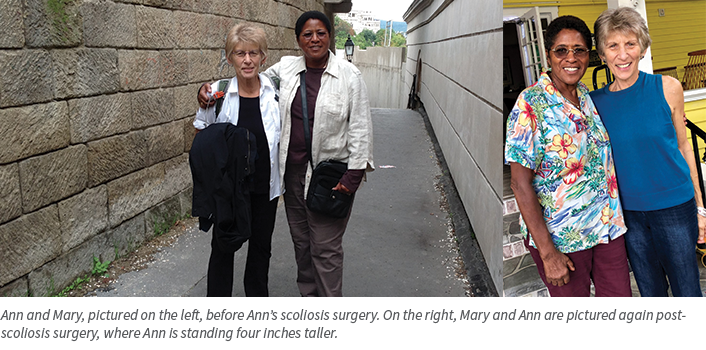 Ann Allen, before and after scoliosis surgery photos