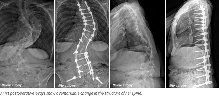Ann Allen, X-rays from scoliosis surgery