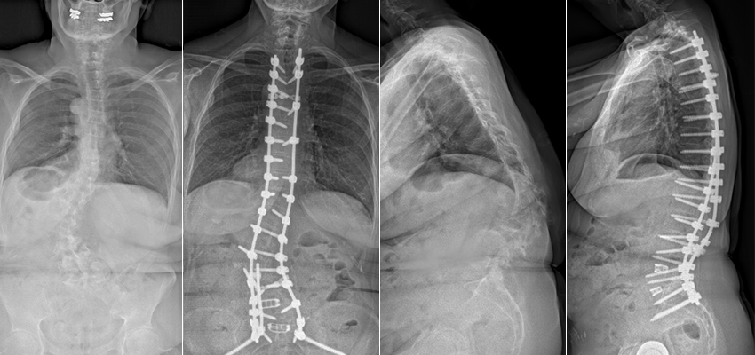 Peggy's X-rays before and after spine surgery for scoliosis and kyphosis