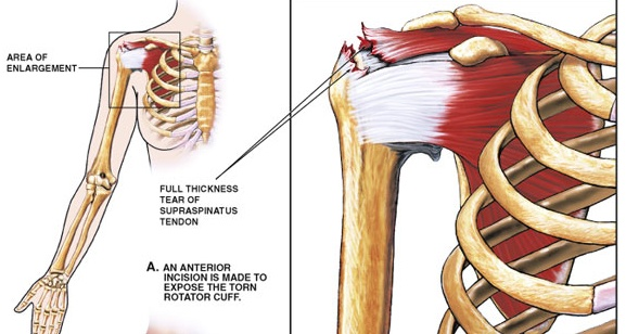 Concerns About Rotator Cuffs Why Operate