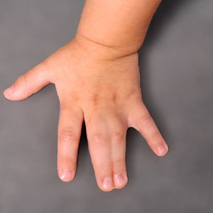 Syndactyly Surgery - Frequently Asked Questions