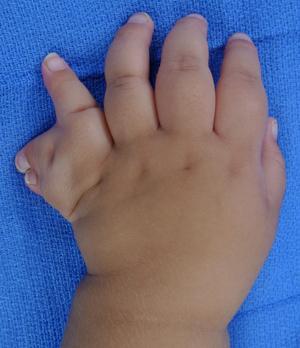 Hand fellowship congenital experience